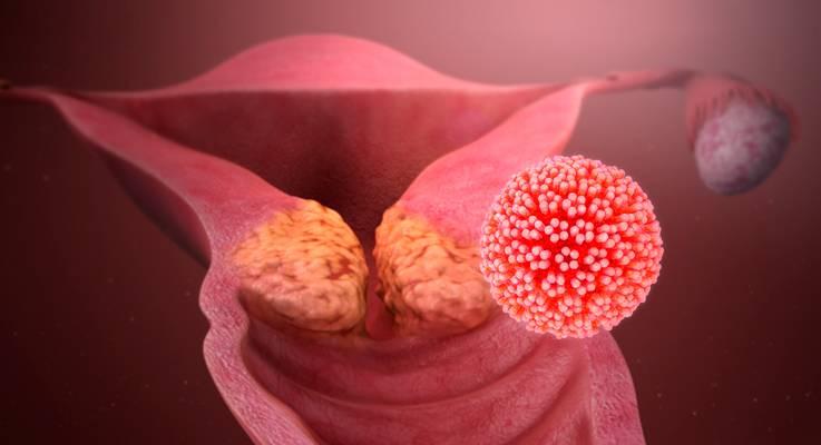 Câncer de colo de útero. FDA concede designação de aprovação acelerada para o balstilimab.