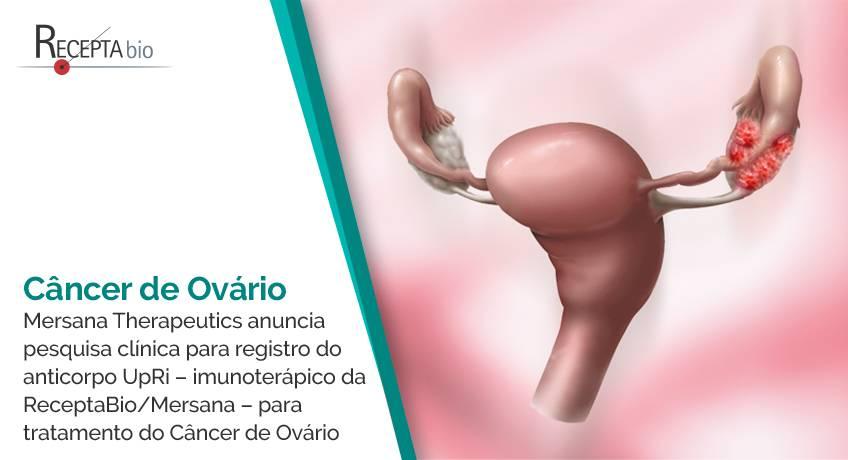 Câncer de Ovário.